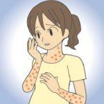 風疹が大流行の兆し!風疹患者数が昨年の5倍!流行の理由は?